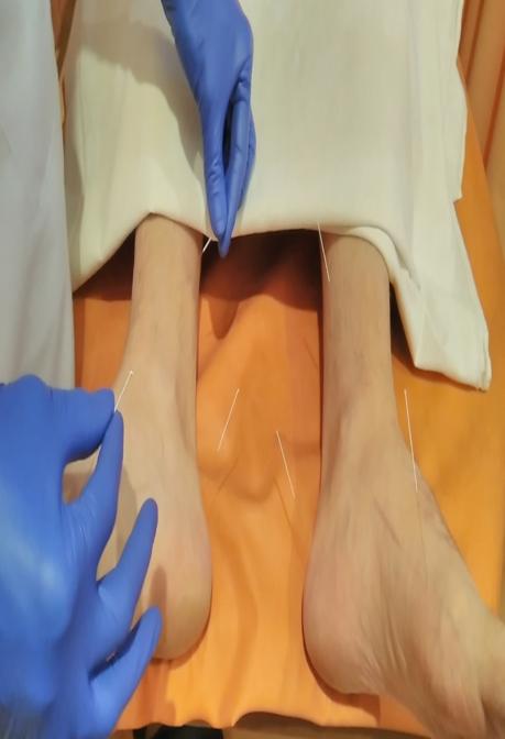 Акупунктура корпоральна та аурикулярна фото 2